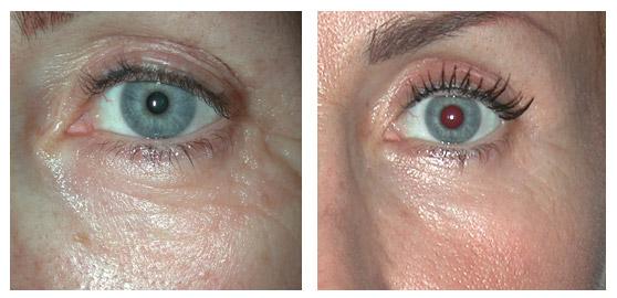 Trattamento di laser di trombosi di occhio